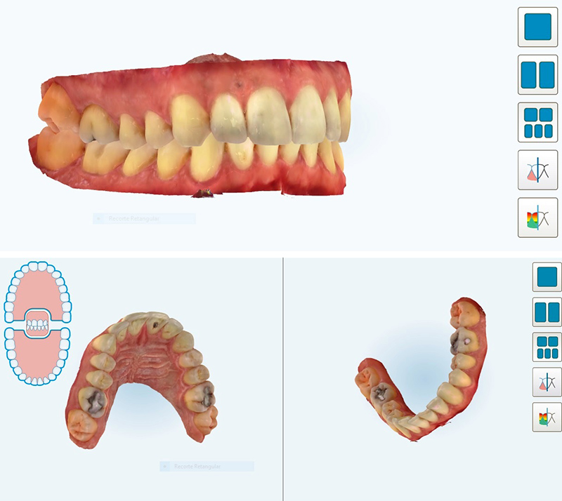 3D analysis of oral structures