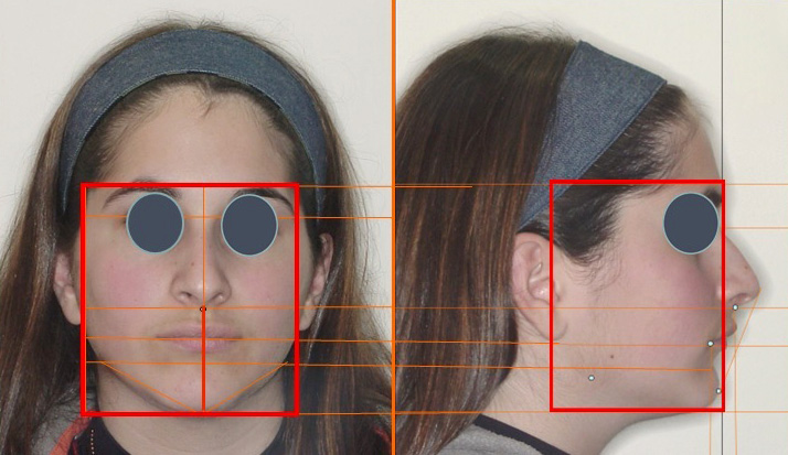 Análise morfovolumétrica da face