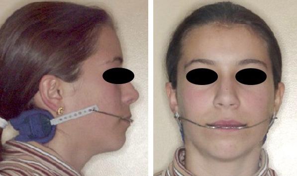 Aparelho extra-oral (Arco facial)