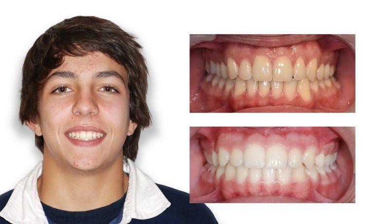 Caso de branqueamento (antes e depois)