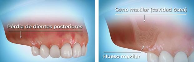 Colocación de implantes cuando hay pérdida de dientes posteriores en lo maxilar superior