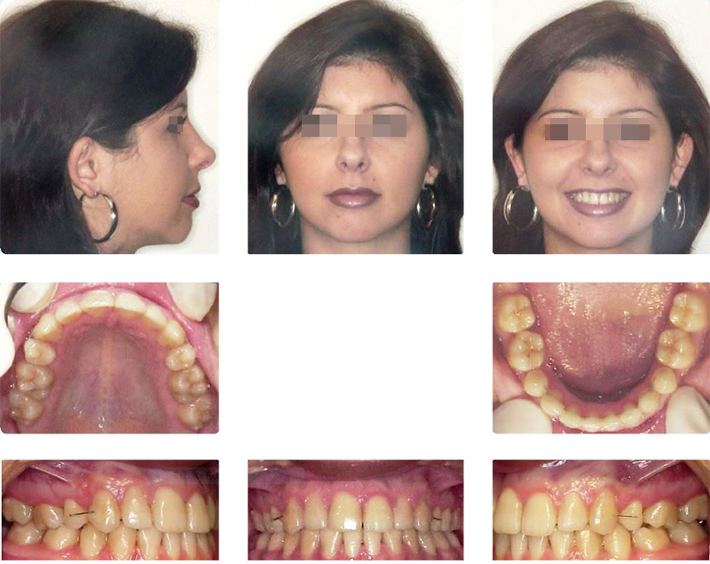 Extra and intraoral standardized photographic study of ORTOPÓVOA