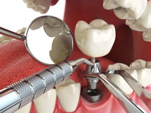 Implantology treatments