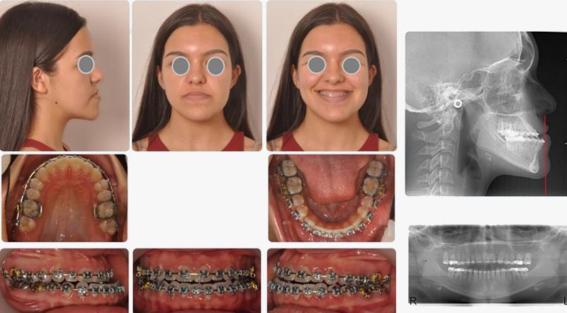 O crescimento craniofacial foi desarmonioso com um excessivo crescimento da mandíbula