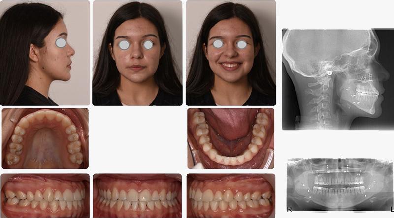 O caso terminado com uma boa estética facial e uma excelente oclusão dentária
