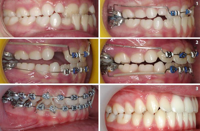 Anterior crossbite orthodontic treatment