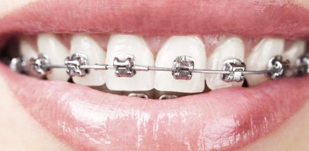 Orthodontics<br>Orthognatic surgery