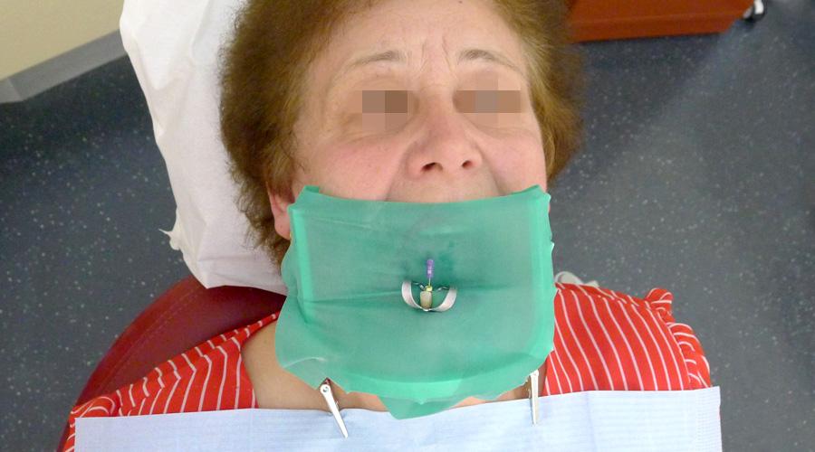 Paciente preparada para tratamento endodôntico num dente incisivo mandibular
