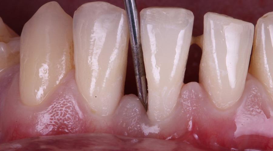 Perda de aderência clínica periodontal