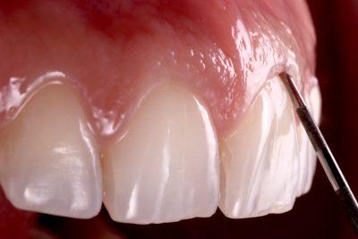 Periodontology