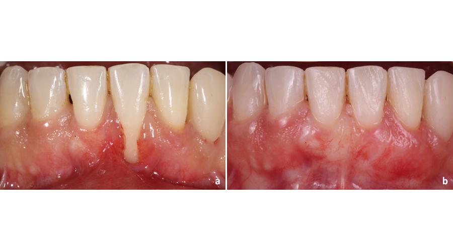 Situação clínica pré (a) e pós (b) recobrimento radicular para tratamento de recessão gengival unitária