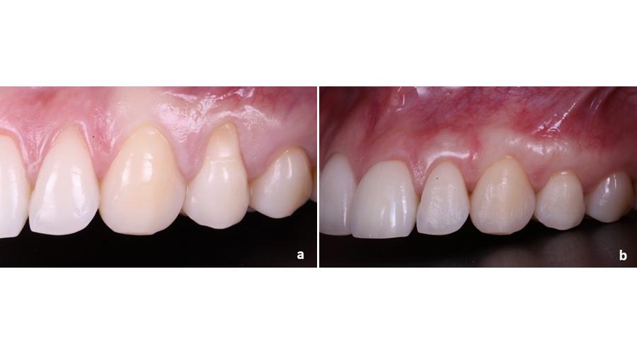 Situação clínica pré (a) e pós (b) recobrimento radicular para tratamento de recessões gengivais múltiplas adjacentes
