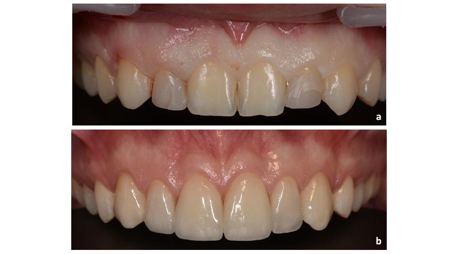 Situação intra-oral pré (a) e pós (b) alongamento da coroa clínica para tratamento do sorriso gengival