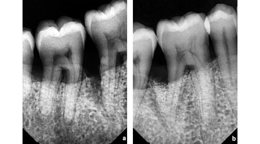 Situação radiográfica pré (a) e pós (b) cirurgia periodontal regenerativa para recuperação de suporte ósseo perdido