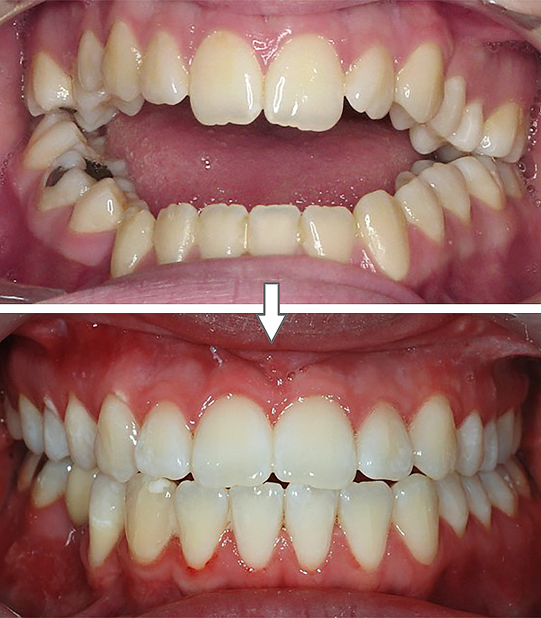 Tratamento ortodôntico-cirúrgico-ortognático (TOCO)