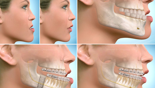 Interdisciplinary orthodontic treatments